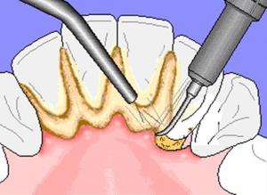 ZubniKamenac2